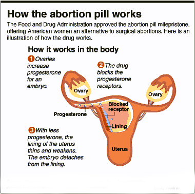 Reasons For Abortion  Misoprostol For Abortion